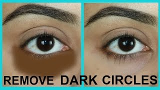 getlinkyoutube.com-100%WORKS | HOW TO REMOVE DARK CIRCLES NATURALLY IN 7 DAYS | TANUTALKS |
