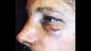 getlinkyoutube.com-Halle Berry's busted ex-boyfriend Gabriel Aubry: I'm the victim in fight with Olivier Martinez