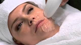 getlinkyoutube.com-Viora Reaction Treatment - Non Invasive Treatment for Nasolabial Folds and More!