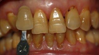 ฟันเหลืองแก้ยังไง?