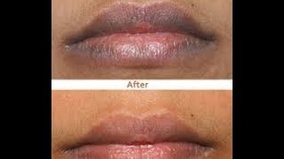 getlinkyoutube.com-Cómo aclarar los labios oscuros - Anastassia Sfeir