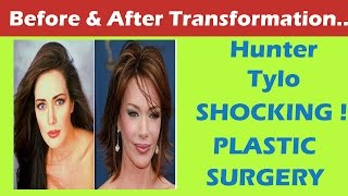 getlinkyoutube.com-Hunter Tylo Plastic Surgery Before and After Full HD