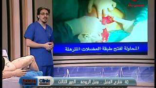 getlinkyoutube.com-الولادة الطبيعية والقيصرية - دكتور وائل البنا #rotana_clinic