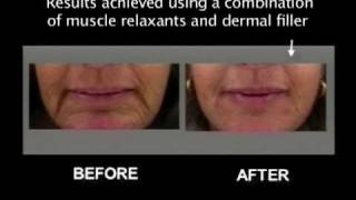 getlinkyoutube.com-LIft the corners of the mouth with dermal fillers and muscle relaxant injections