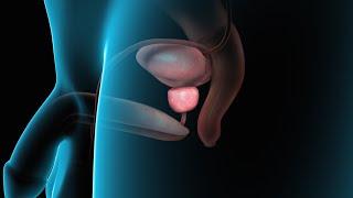 getlinkyoutube.com-Benign Prostatic Hyperplasia | Nucleus Health