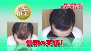 getlinkyoutube.com-日本で最初に「発毛・育毛の特許」を取得!