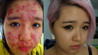 From Severe Acne to Clear Skin