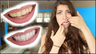 getlinkyoutube.com-How to Whiten Teeth in 2 Minutes! [guaranteed whiten teeth]