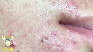 Pimples And Cystic Acne Extraction On Face For Relaxing!