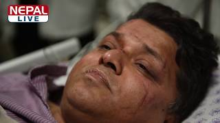 Exclusive: US-Bangla air crash's injured passenger keshav pandey विमान दुर्घटनामा बाँचेका केशव