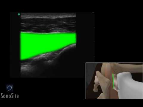 3D How To: Ultrasound Guided Shoulder Injection Lateral Approach - SonoSite Ultrasound