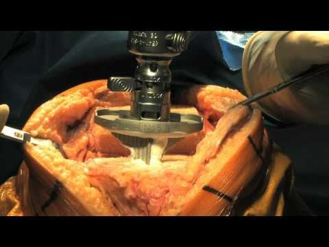 Total Knee Replacement Surgery Part 2 - Update 2011