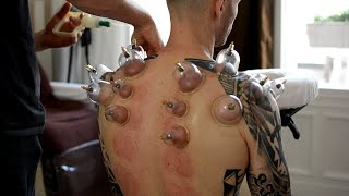 getlinkyoutube.com-ASMR Chair Massage Back & Neck, No Talking - Cupping Therapy, Gua Sha Pt 2