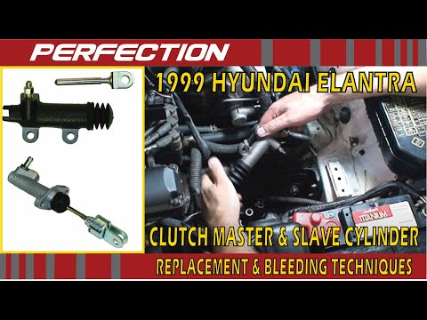 Water Pump Location On 2008 Honda Accord V6 together with Ac  pressor Replacement Cost as well Dodge Intrepid Water Pump Location additionally How To Remove Headlight 2006 Kia Optima in addition 94 Camaro Cooling System Diagram Wiring Photos For. on 1992 dodge alternator diagram