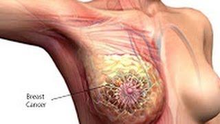getlinkyoutube.com-বেশিক্ষণ বসে থাকা নারীদের স্তন এবং জরায়ু ক্যান্সারের ঝুঁকির কারণ |  Women's risk of breast and uter