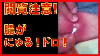 getlinkyoutube.com-閲覧注意!ニキビ・膿が皮膚の下でめっちゃ成長してる!ニキビ・膿が にゅるにゅる ドピュっとグロいし、周りの皮膚の色が紫って!CYST PIMPLE POPPING