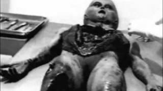 getlinkyoutube.com-Alien Autopsy   Roswell UFO Crash 1947 Original footagedocumentary