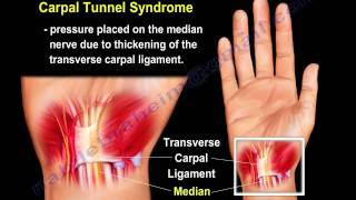 getlinkyoutube.com-wrist pain,causes and treatment  PART I. Everything You Need To Know - Dr. Nabil Ebraheim