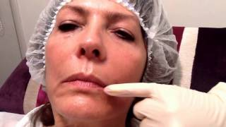 getlinkyoutube.com-Juvederm Volift to lift Mouth Corners - Outline Clinic, Droitwich, UK