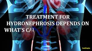 TREATMENT OF HYDRONEPHROSIS