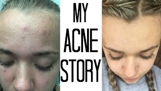 getlinkyoutube.com-HOW I GOT RID OF MY ACNE