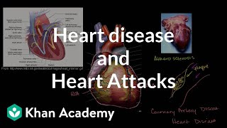 Heart Disease and Heart Attacks