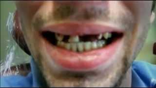 getlinkyoutube.com-Drogen Doku: Die gefährlichste Droge der Welt Crystal Meth