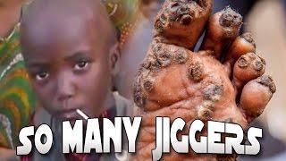 getlinkyoutube.com-Margaret's Jigger Popping!  Extreme Jigger Removal MON