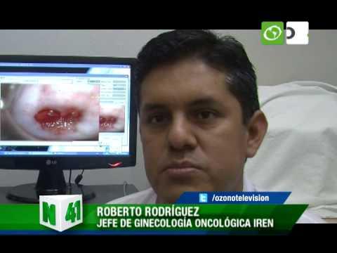 Nueva técnica mejora detección temprana del cáncer de cuello uterino - Trujillo