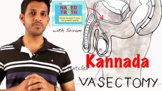 getlinkyoutube.com-What is a Vasectomy in Kannada