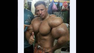 THE BIGGEST SYNTHOL FREAK EVER !!!!!!