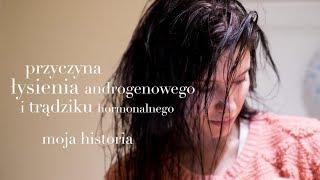 getlinkyoutube.com-Co się stało z moją CERĄ i WŁOSAMI?!