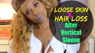 getlinkyoutube.com-Loose Skin and Hair Loss After Vertical Sleeve Gastrectomy Surgery