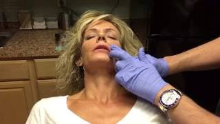getlinkyoutube.com-Juvederm Volbella XC (conservative lip injection in thin lips)