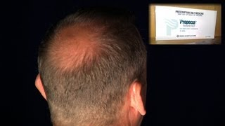 getlinkyoutube.com-Sexual Problems Sometimes Irreversible Side Effect of Hair Loss Drug Propecia