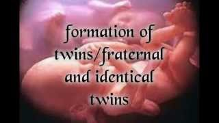 getlinkyoutube.com-multiple twins/identical and fraternal twins