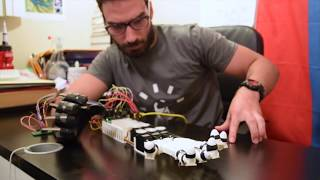 getlinkyoutube.com-High School Student Creates a Robotic Hand