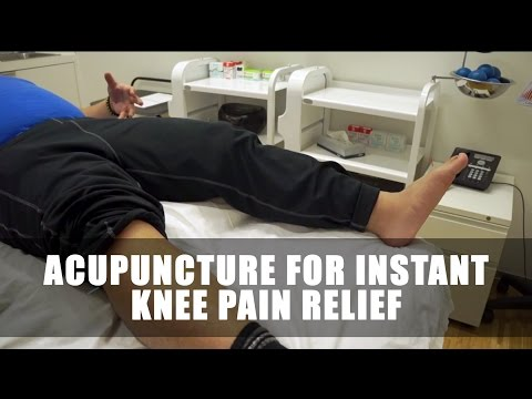 Acupuncture for Instant Knee Pain Relief