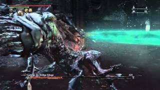 "getlinkyoutube.com-Bloodborne BOSS LUDWIG (NG7) Dlc the old Hunters ""Epic Boss"""