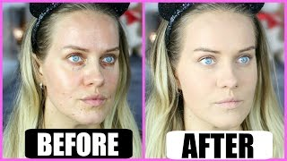 getlinkyoutube.com-Acne skin FOUNDATION ROUTINE - how to conceal pimples