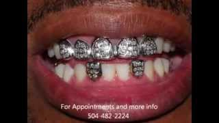 getlinkyoutube.com-Gold Teeth New Orleans
