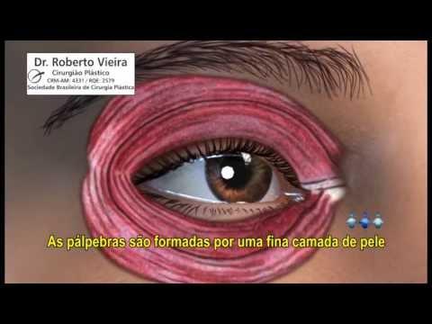 BLEFAROPLASTIA - Dr. Roberto Vieira
