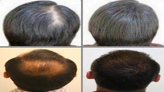 getlinkyoutube.com-خلطة طبيعية مجربة وضمونة لتكثيف الشعر      (HD)