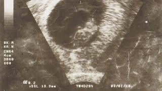 getlinkyoutube.com-Erster Frauenarztbesuch/ Ultraschall - Abtreibung? Ängste, Fragen, Gedanken