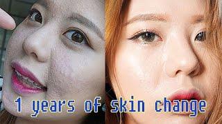 1년간의 피부변화[1 years of skin change]2015~2016/JAENA재나/Acne care Self skincare
