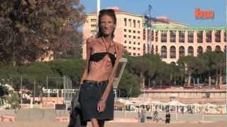 getlinkyoutube.com-La mujer más Anorexic en el mundo!
