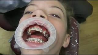 getlinkyoutube.com-Watch how we put your braces on!