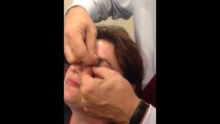 How to double evert the upper eyelid using a bent paperclip