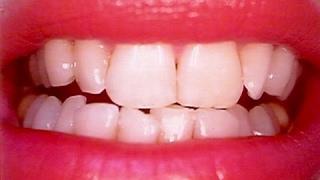 getlinkyoutube.com-بشئ موجود في الثلاجة استخدميه دقيقة واحدة فقط وشوفي اسنانك كيف تغيرت / أسرع طريقة لتبييض الاسنان