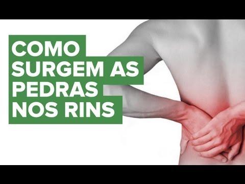 Como se forma o cálculo renal ou pedra nos rins? - Educar para Prevenir Fundação Pró-Rim